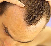 Men S Receding Hairline Signs